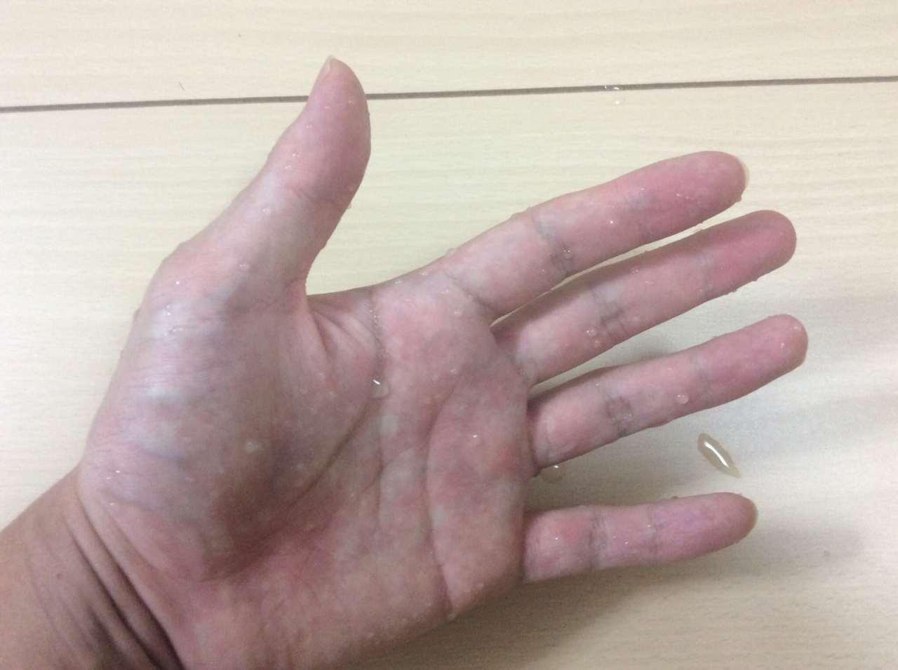 KEAR(ケアラ)を塗った手を洗って水で濡らした状態