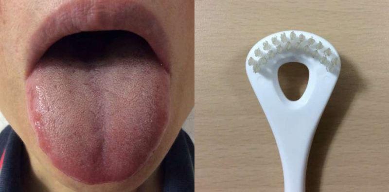ビタンとタンシャインを使用前の舌とブラシ