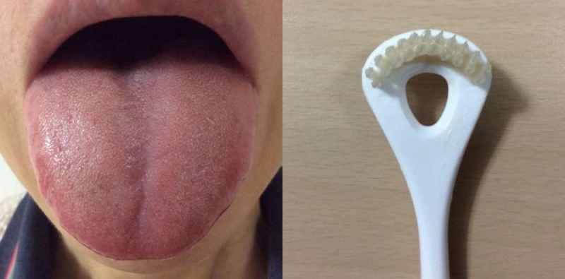 ビタンとタンシャインを使用後の舌とブラシ