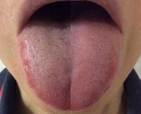ビタンとタンシャインの使用前と使用後の舌の比較