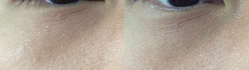 ストレッチアイズの塗る前と塗った後のビフォーアフターの比較写真1