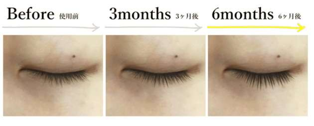 目元とまつ毛のご褒美のビフォーアフターの比較写真2