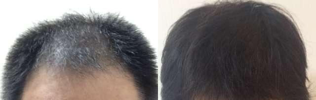 薄毛治療の効果(0カ月目と6カ月目の比較)