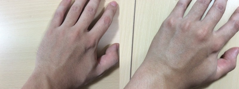 Datsumo Labo Home Editionで脱毛処理した手の甲のビフォーアフターの比較写真