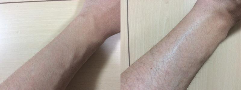 Datsumo Labo Home Editionで脱毛処理した腕のビフォーアフターの比較写真