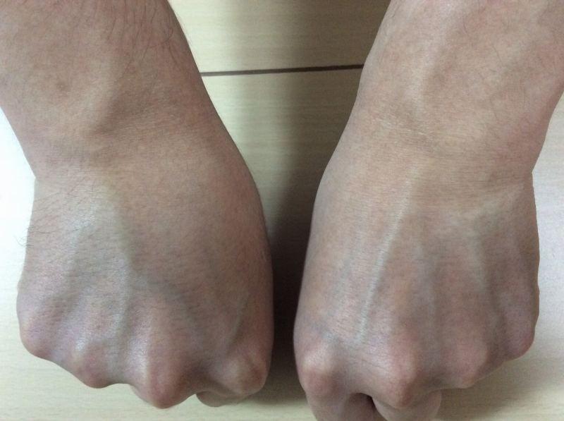 Datsumo Labo Home Editionで脱毛処理していない右手と脱毛処理した左手の比較写真