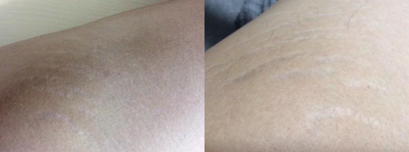 ノコアクリームとノコアオイルを使用する前(左)と使用した後(右)のビフォーアフターの比較写真