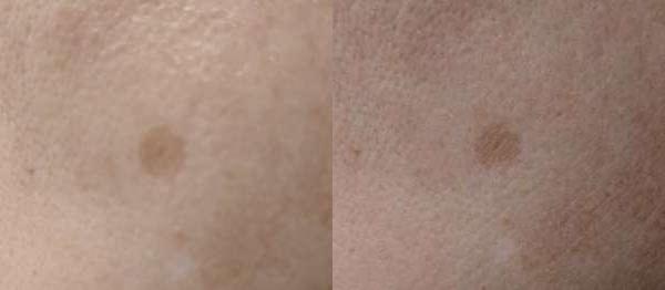 桜白のマイクロニードルパッチの使用前と使用後のビフォーアフター写真